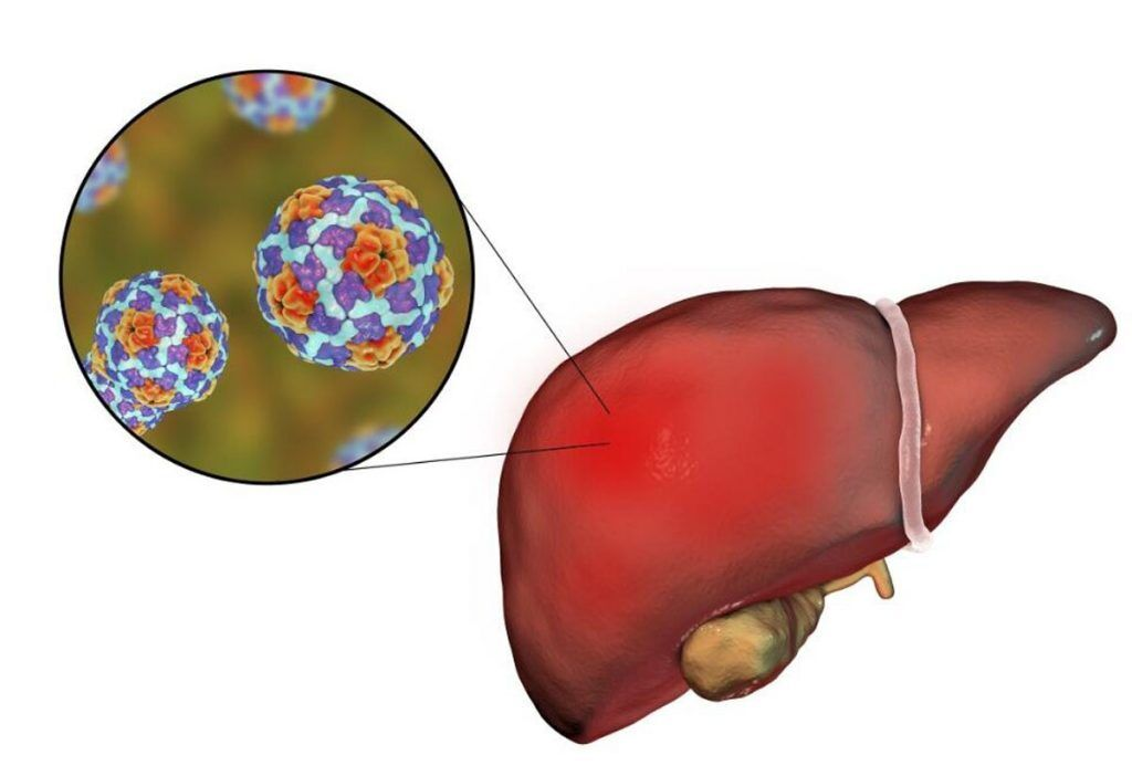 پودر Elafibranor (GFT505) - داروی جدید برای درمان NASH